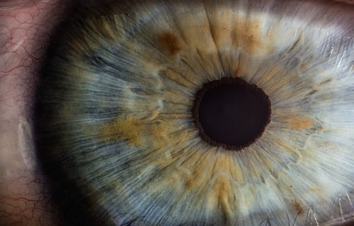GSK Internship; picture of an eye