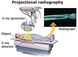 Radiography career: how radiography works